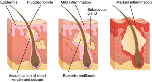 The process of formation of Acne within our skin, what is acne, how is acne formed