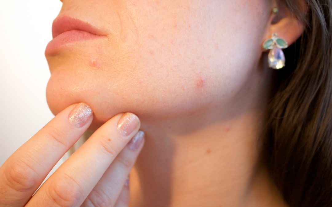 Acne: What is it and What causes Acne