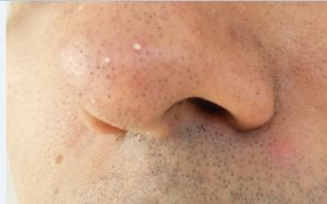 Picture of a nose showing difference between Blackheads, Whiteheads & Papule, acne, pimples