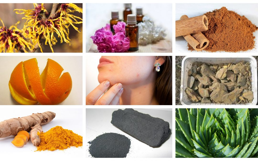 Top 10 remedies for pimples